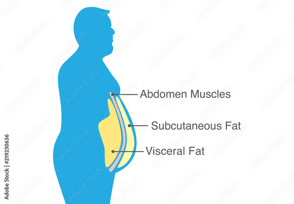 Fototapeta Location of Visceral fat stored within the abdominal cavity. Illustration about medical diagram.
