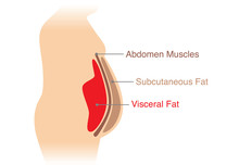 Location Of Visceral Fat Stored Within The Abdominal Cavity. Illustration About Medical Diagram.