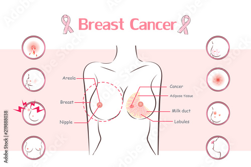 woman with breast cancer symptom Fototapete