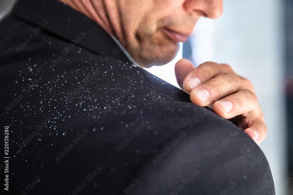 Fototapeta Businessman Brushing Off Fallen Dandruff On Shoulder