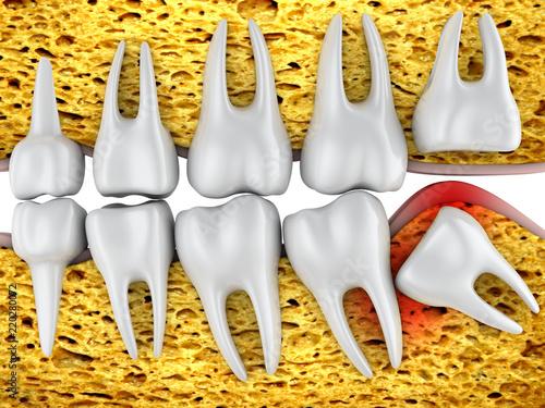 Fotografía  molars and  wisdom tooth
