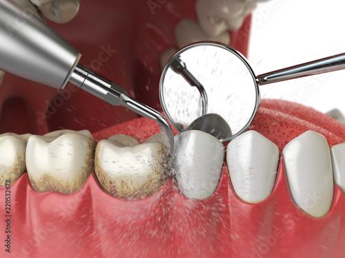 Valokuva Professional teeth cleaning