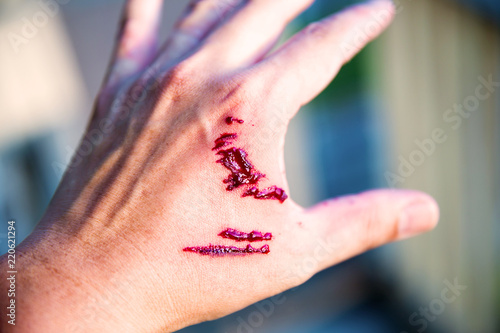 Fotografía  Focus dog bite wound and blood on hand