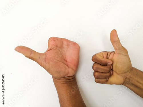 Amputate finger of people from accident. Canvas Print