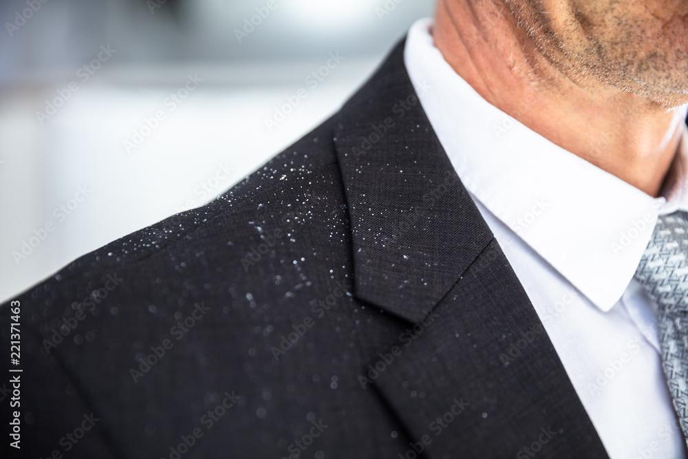 Fototapeta Dandruff Fallen On Businessperson's Shoulder