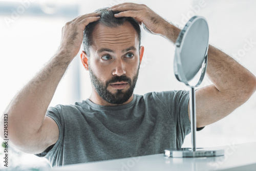 Fotomural bearded mid adult man with alopecia looking at mirror, hair loss concept