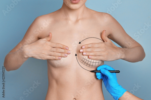 Doctor marking woman breast on color background. Cosmetic surgery Canvas Print