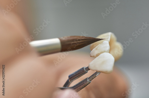 Fotografía  Closeup of dental technician putting ceramic to dental implants in his laboratory