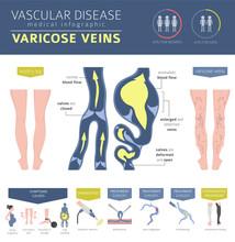 Vascular Diseases. Varicose Ve...