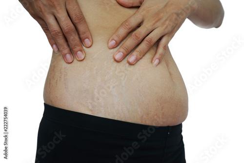 Fotografia, Obraz  stretch marks on Asian woman belly