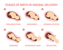 Stages Of Baby Birth In Vaginal Delivery