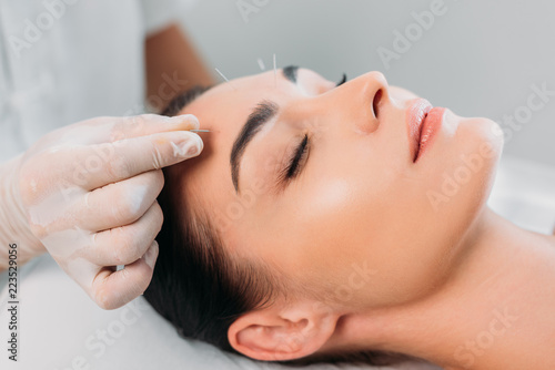 Photo partial view of cosmetologist putting needles on womans forehead during acupunct