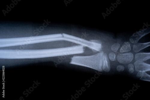 Fotografia x-ray film skeleton human arm