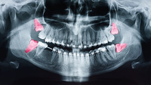 Growing Wisdom Teeth Pain On X-Ray