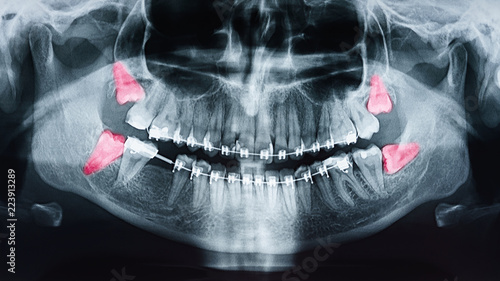 Fotomural Growing Wisdom Teeth Pain On X-Ray