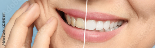Fotografie, Obraz  Smiling woman before and after teeth whitening procedure, closeup