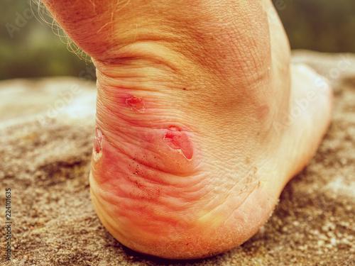 Fotografie, Obraz  Man hiker sweaty legs with horrible painful callus resting on peak