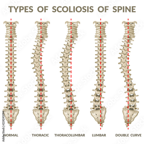 Fotografía  Infographics types of scoliosis of spine