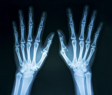 Film X-ray Normal Both Human's Hands