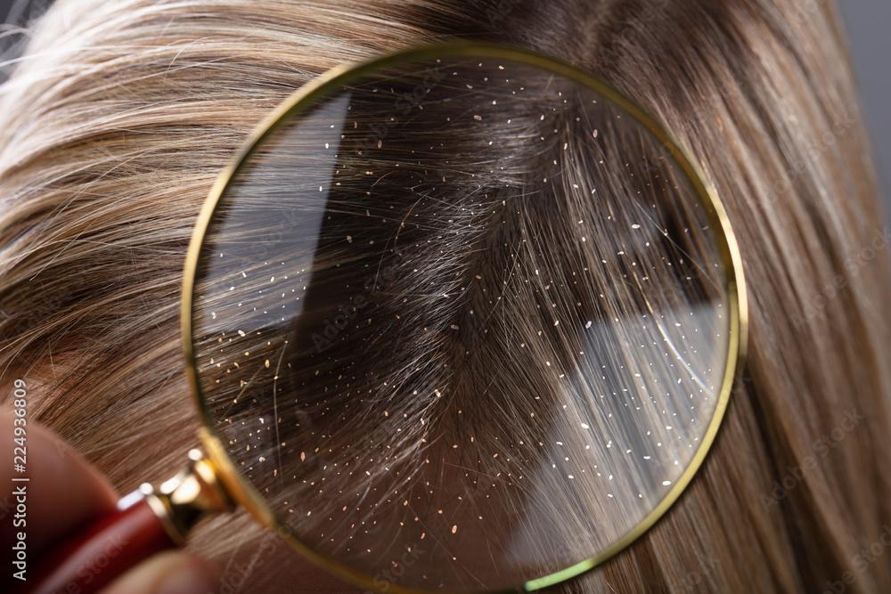 Fototapeta Dandruff In Hair Seen Through Magnifying Glass