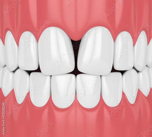 Valokuva 3d render of teeth with convergent diastema