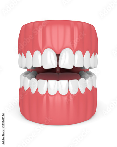 3d render of teeth with convergent diastema Canvas-taulu