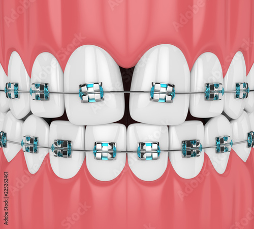 3d render of teeth with convergent diastema and braces Canvas Print