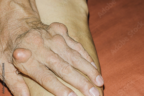 Severe gout in men suffering from joint pain, bone pain