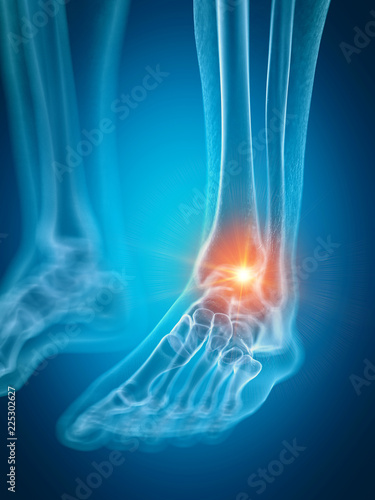 Photo 3d rendered medically accurate illustration of a painful ankle