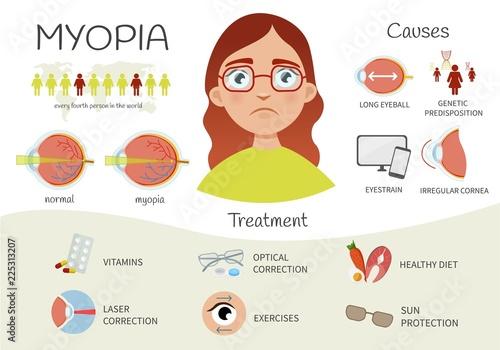 Fotografía  Infographics of myopia