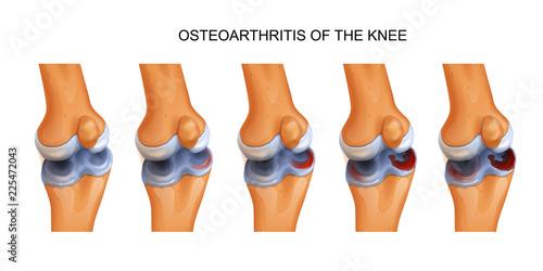 osteoarthritis of the knee Canvas Print