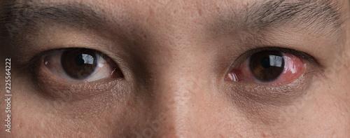 Cuadros en Lienzo Human's red eye conjunctivitis
