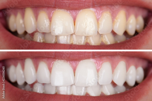 Cuadros en Lienzo Woman's Teeth Before And After Whitening