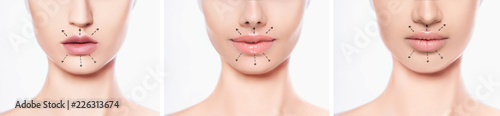 Fotografia set lips after botulinum Toxin Injection, lip augmentation procedure and set bea