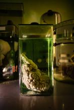 Animal Brain In Glass Jar With...