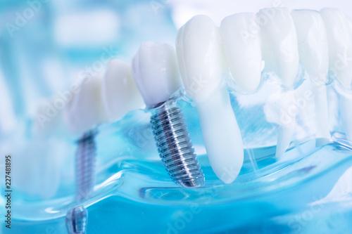 Photo  Dentist dental teeth implant