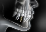 Zahnimplantat - Bildbeispiel
