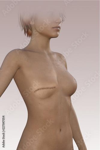 Fototapeta Donna senza seno dopo una mastectomia. Cicatrice sul corpo. Asportazione chirurgica della mammella obraz