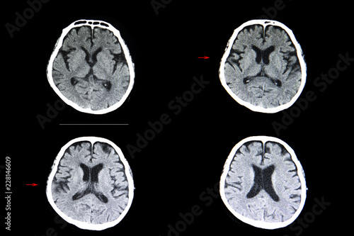 brain atrophy and cerebral infarction Canvas Print