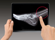 Close-up Of Woman Holding Digital Tablet - X-ray Of A Broken Hip