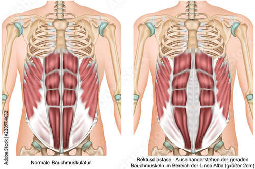 Obraz Rektusdiastase Anatomie Bauchmuskeln vektor illustration - fototapety do salonu