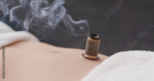 Valokuva  Chinese traditional medicine moxibustion therapy