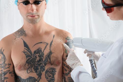 Photo Man undergoing laser tattoo removal procedure in salon