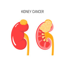 Kidney Cancer Vector Concept
