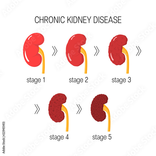 Fotomural Chronic kidney disease vector