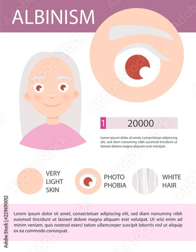 Tablou Canvas Infographics of albinism