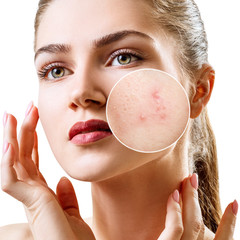 Fototapeta Young woman with acne skin in zoom circle.