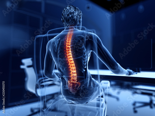 Fotografía  3d rendered illustration of a man working on a pc - having a painful back