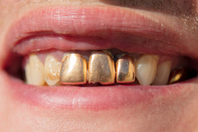 Golden Teeth In The Mouth Of A Man