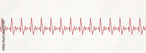 Stampa su Tela irregular fast heart beat